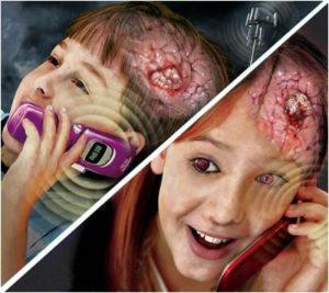 tumor-otak